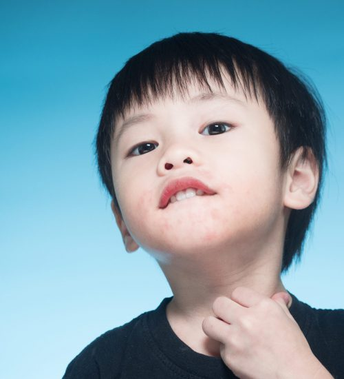 Asian boy got dairy or milk allergy got red skin rash around his month keep scratching blue background