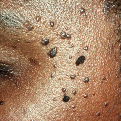 Moles SPN
