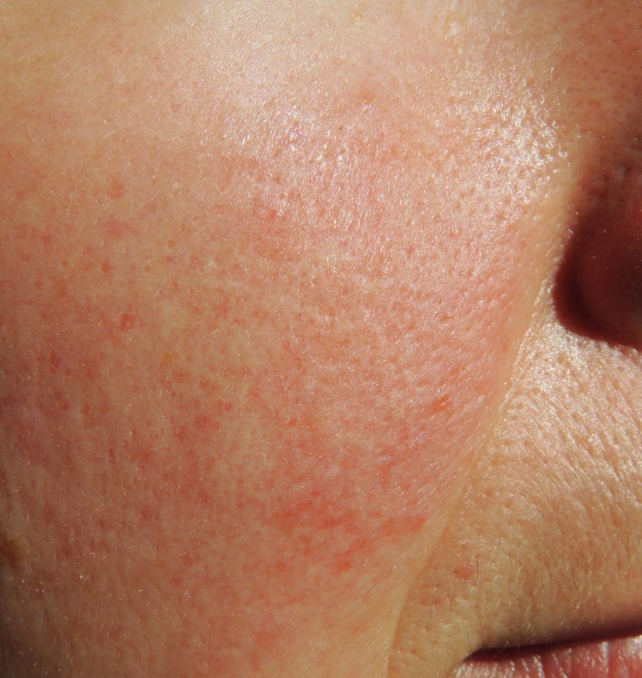 excel-v-and-rosacea-scaled