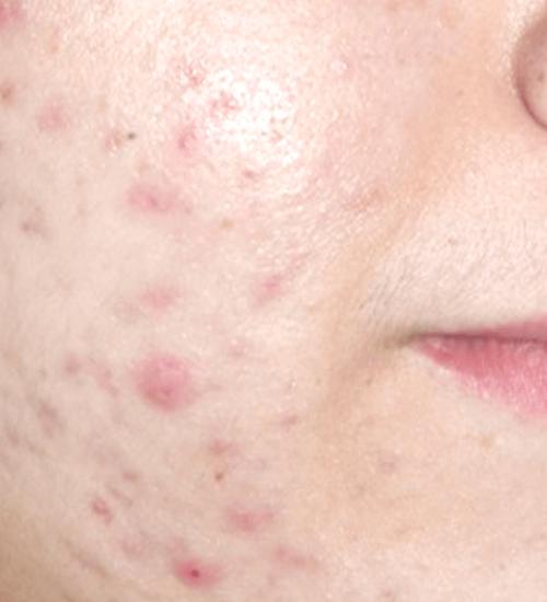 holcomb-pure-dermatology-acne