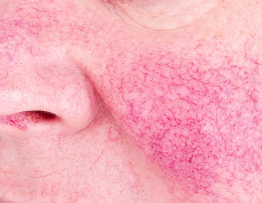 holcomb-pure-dermatology-broken-blood-vessels-1