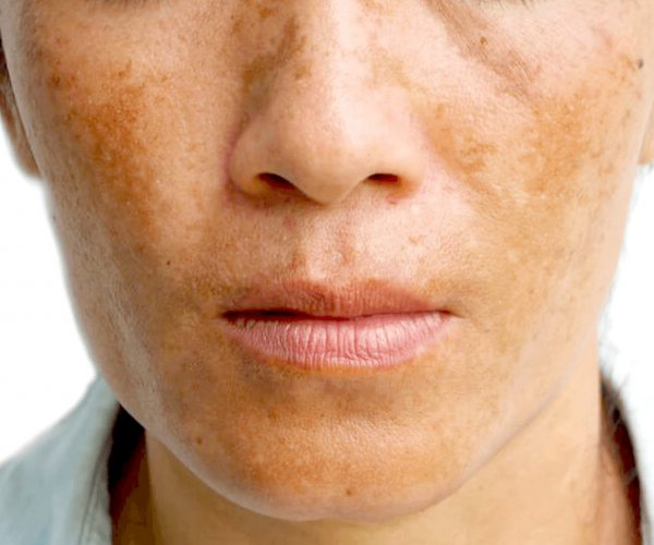 holcomb-pure-dermatology-melasma-sun-spots-1